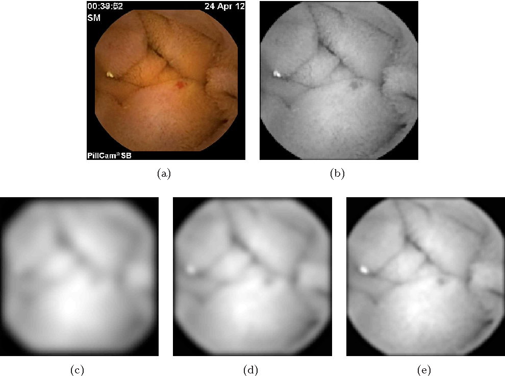 Figure 3 for An Elastic Image Registration Approach for Wireless Capsule Endoscope Localization