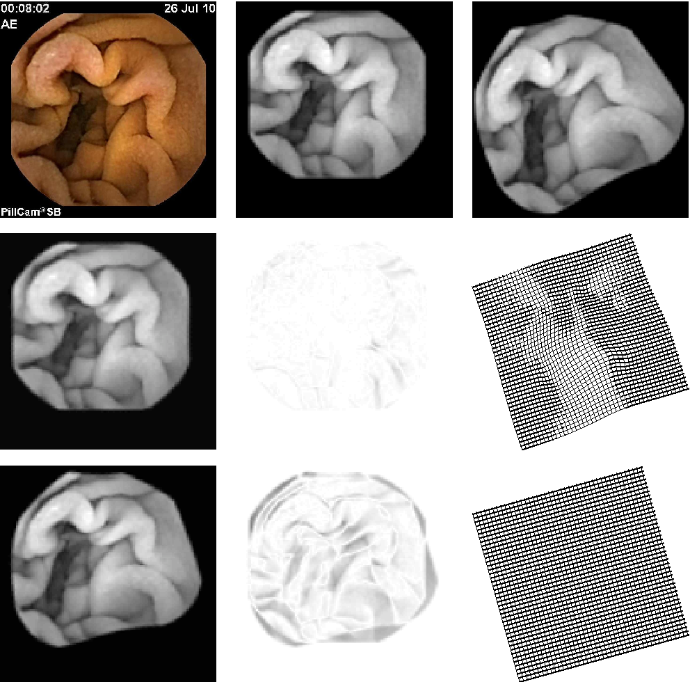 Figure 4 for An Elastic Image Registration Approach for Wireless Capsule Endoscope Localization