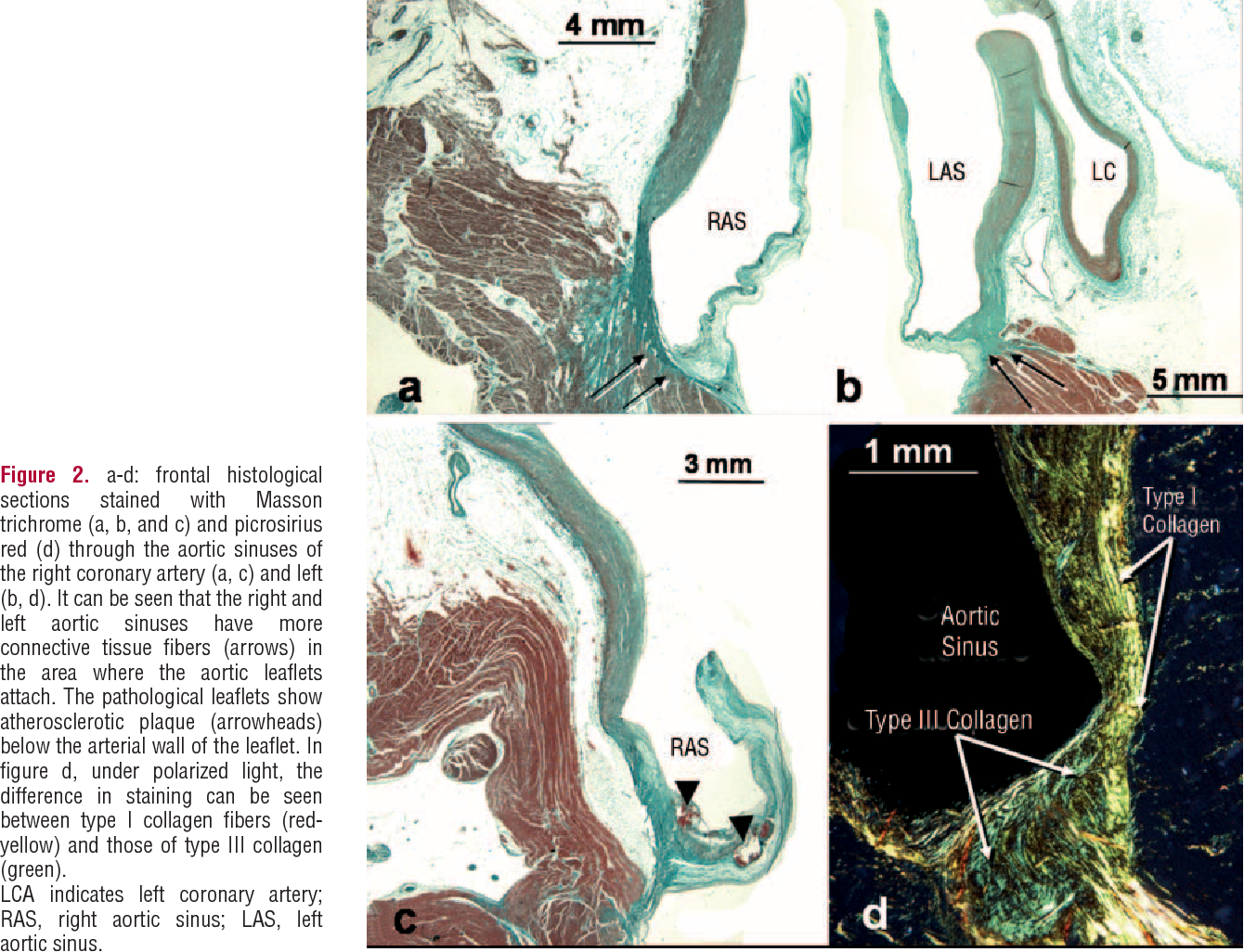 Figure 2. a-d: frontal histological sections stained with Masson trichrome (a, b, and c) and picrosirius red (d) through the aortic sinuses of the right coronary artery (a, c) and left (b, d). It can be seen that the right and left aortic sinuses have more connective tissue fibers (arrows) in the area where the aortic leaflets attach. The pathological leaflets show atherosclerotic plaque (arrowheads) below the arterial wall of the leaflet. In figure d, under polarized light, the difference in staining can be seen between type I collagen fibers (redyellow) and those of type III collagen (green). LCA indicates left coronary artery; RAS, right aortic sinus; LAS, left aortic sinus.