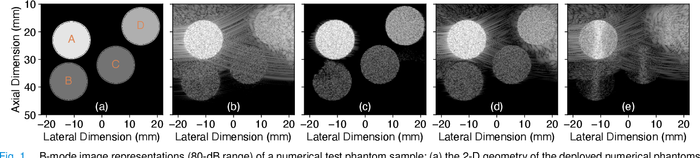Figure 1 for CNN-Based Ultrasound Image Reconstruction for Ultrafast Displacement Tracking