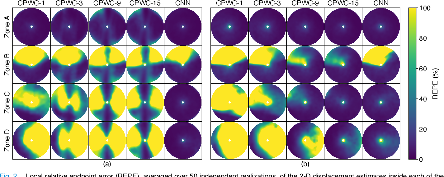 Figure 2 for CNN-Based Ultrasound Image Reconstruction for Ultrafast Displacement Tracking