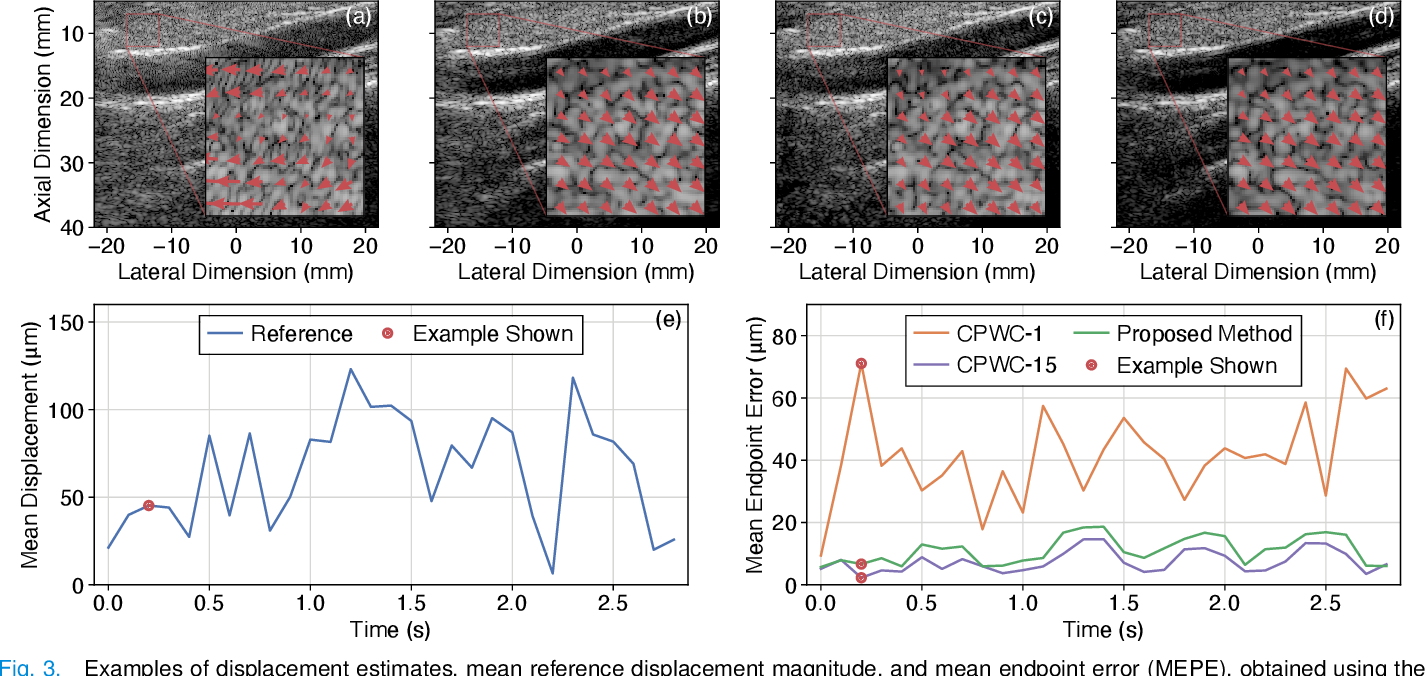 Figure 3 for CNN-Based Ultrasound Image Reconstruction for Ultrafast Displacement Tracking