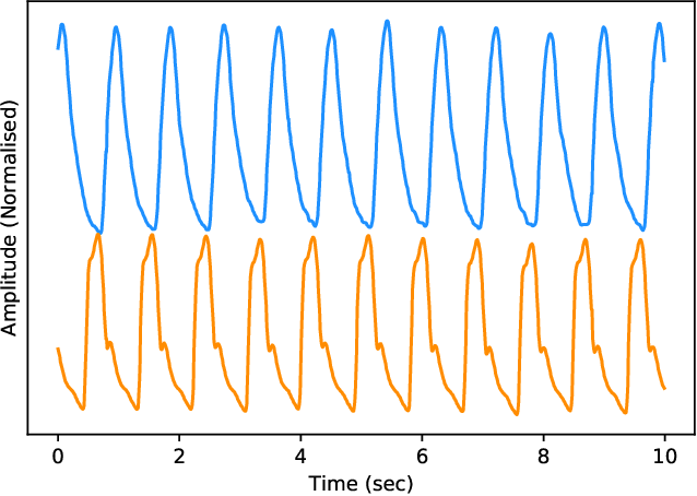 Figure 3 for Estimation of Continuous Blood Pressure from PPG via a Federated Learning Approach