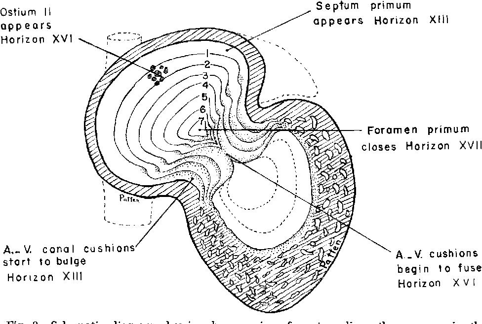Figure 8 from Persistent interatrial foramen primum. - Semantic Scholar