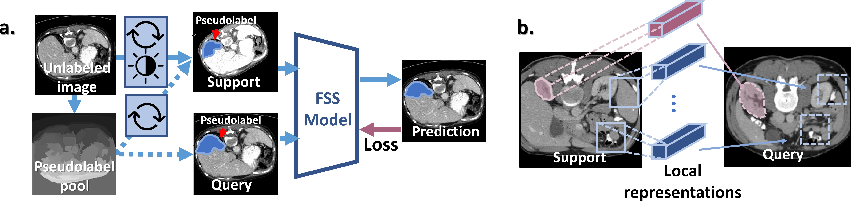 Figure 1 for Self-Supervision with Superpixels: Training Few-shot Medical Image Segmentation without Annotation