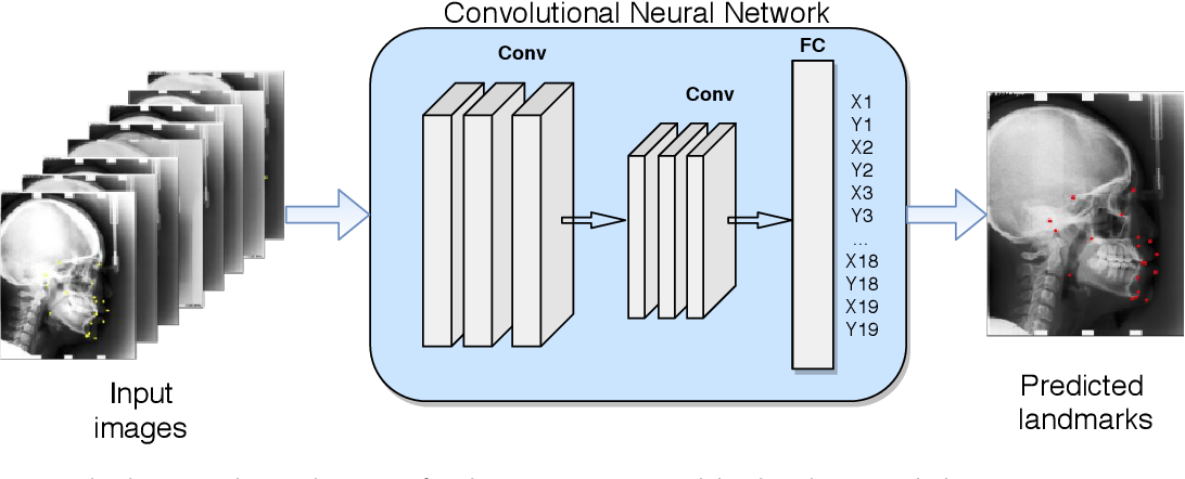 Figure 1 for Convolutional Neural Networks in Orthodontics: a review