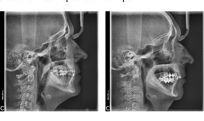 Figure 3 for Convolutional Neural Networks in Orthodontics: a review