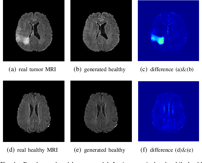 Figure 1 for An Adversarial Learning Approach to Medical Image Synthesis for Lesion Removal