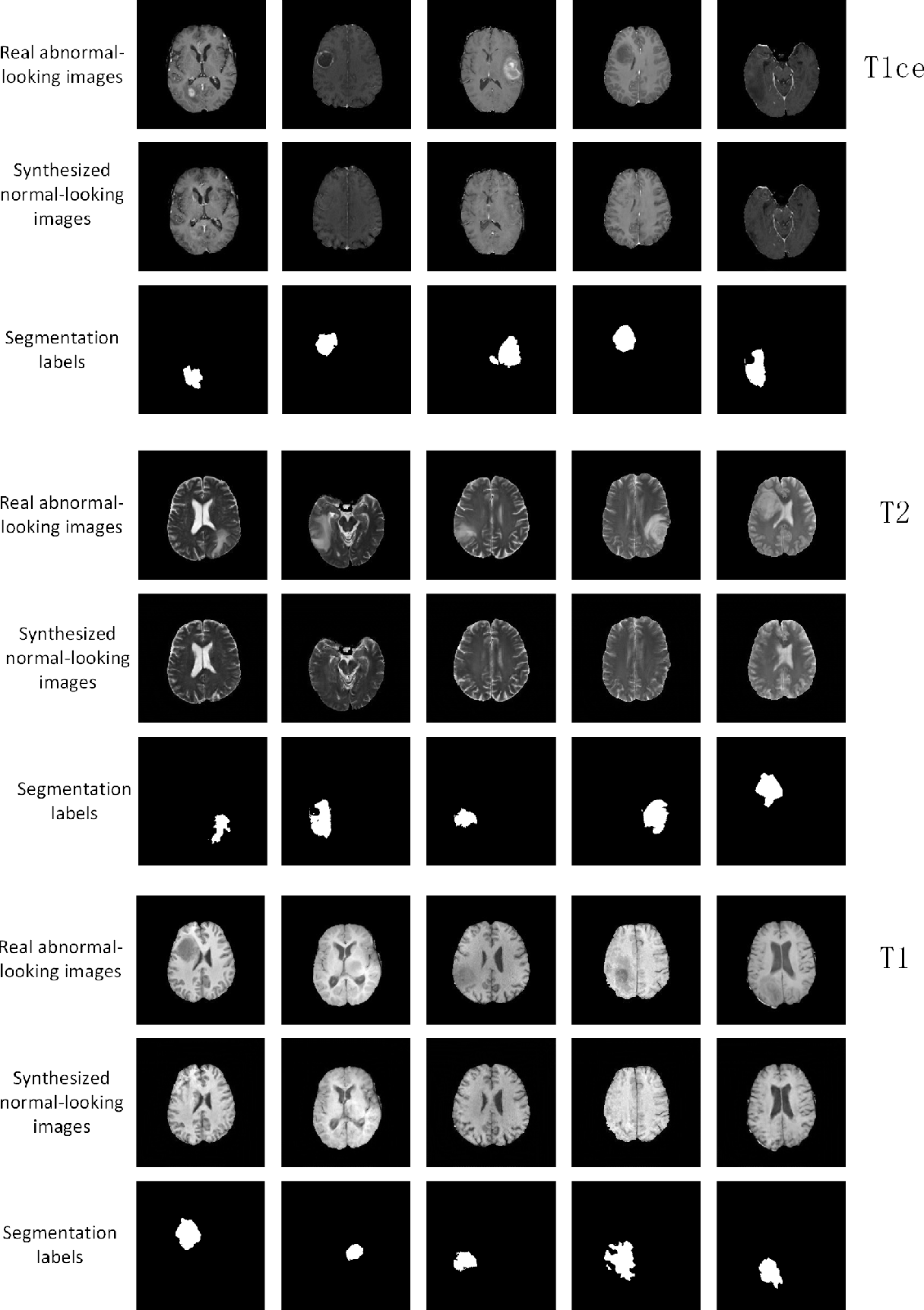 Figure 2 for An Adversarial Learning Approach to Medical Image Synthesis for Lesion Removal