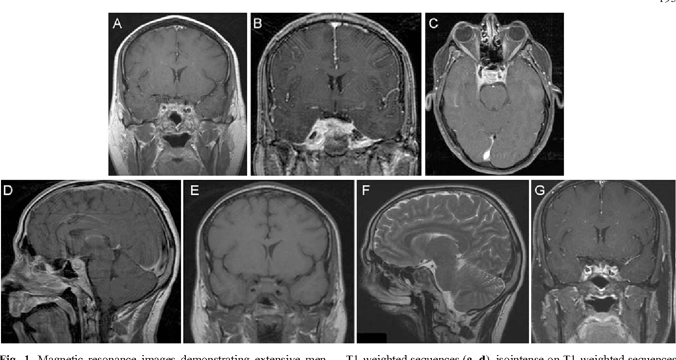 Inflammatory Pseudotumor Of The Cavernous Sinus And Skull Base
