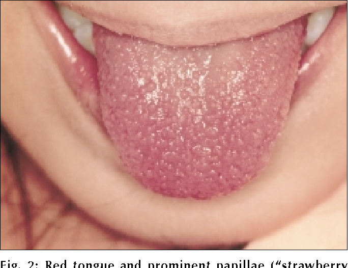 Kawasaki Disease Strawberry Tongue Pictures