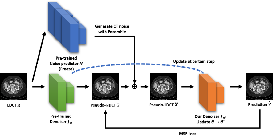 Figure 1 for Self-Supervised Learning based CT Denoising using Pseudo-CT Image Pairs