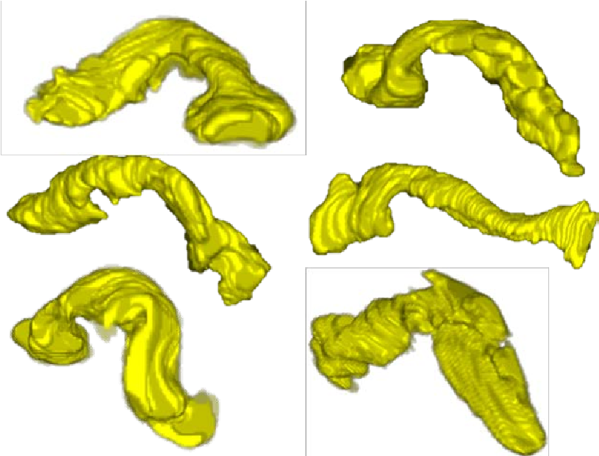 Figure 1 for A Bottom-up Approach for Pancreas Segmentation using Cascaded Superpixels and (Deep) Image Patch Labeling