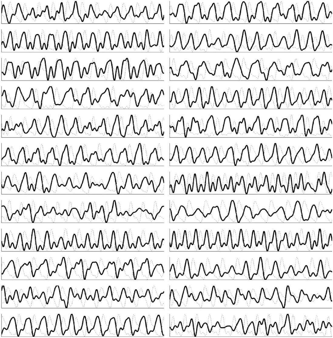 Figure 4 for Non-contact hemodynamic imaging reveals the jugular venous pulse waveform