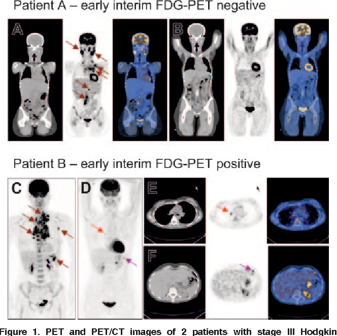 Figure 1 from FDG-PET after two cycles of chemotherapy