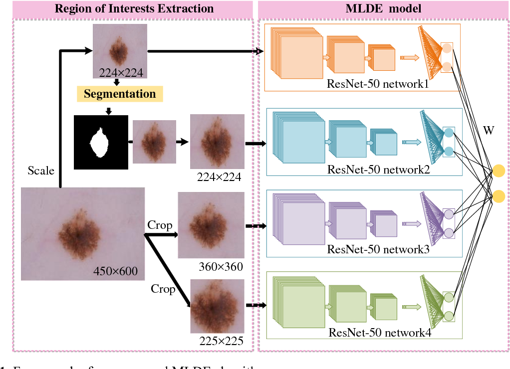 Figure 1 for A Multi-Level Deep Ensemble Model for Skin Lesion Classification in Dermoscopy Images