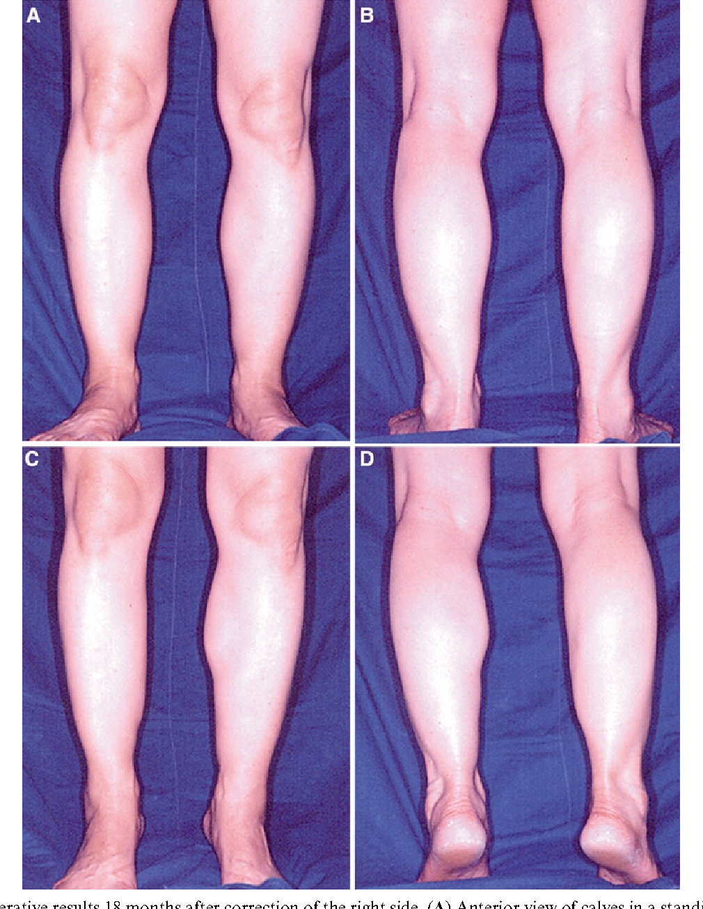 Compensatory Hypertrophy Of Calf Muscles After Selective Neurectomy
