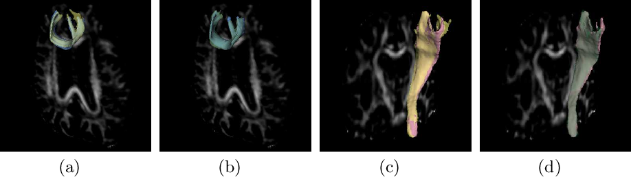 Figure 4 for Reproducible White Matter Tract Segmentation Using 3D U-Net on a Large-scale DTI Dataset