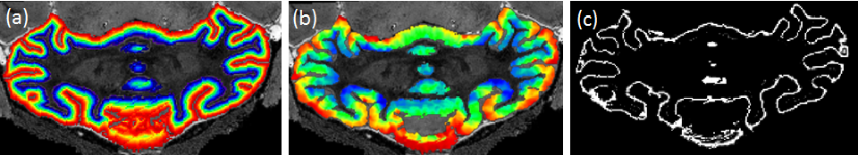 Figure 2 for Grey matter sublayer thickness estimation in themouse cerebellum