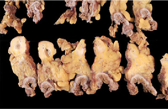 Figure 2 Resection specimen showing sections of ascending colon and the mesenteric mass.