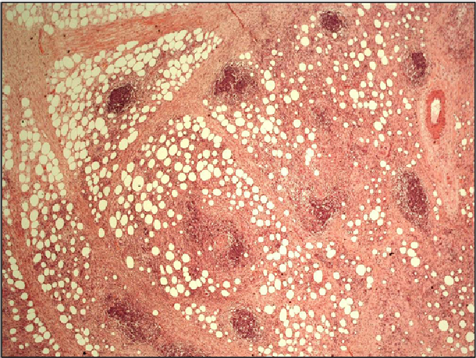 Figure 3 Histopathology from the mesenteric mass.