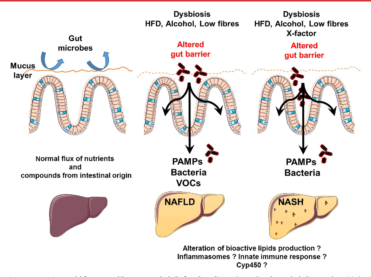 Figure 2 from gut microbiome and liver diseases semantic scholar figure 2 disease progression model from normal liver to non alcoholic fatty liver disease ccuart Images