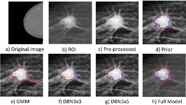 Figure 1 for Deep Structured learning for mass segmentation from Mammograms