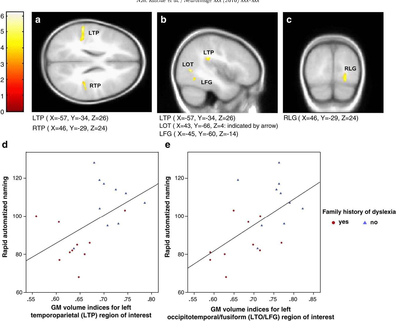 The History Of Dyslexia >> Structural Brain Alterations Associated With Dyslexia Predate