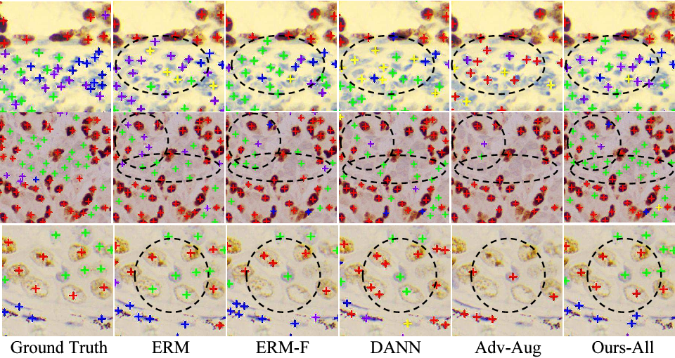 Figure 4 for Generalizing Nucleus Recognition Model in Multi-source Images via Pruning