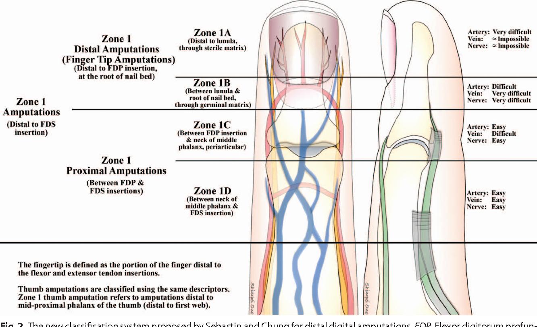 Figure 2 from Distal digital replantation. - Semantic Scholar