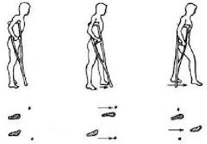 Figure 1 for Evaluating the Effect of Crutch-using on Trunk Muscle Loads