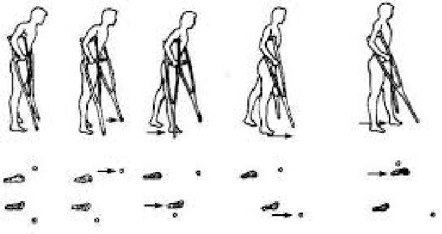 Figure 3 for Evaluating the Effect of Crutch-using on Trunk Muscle Loads