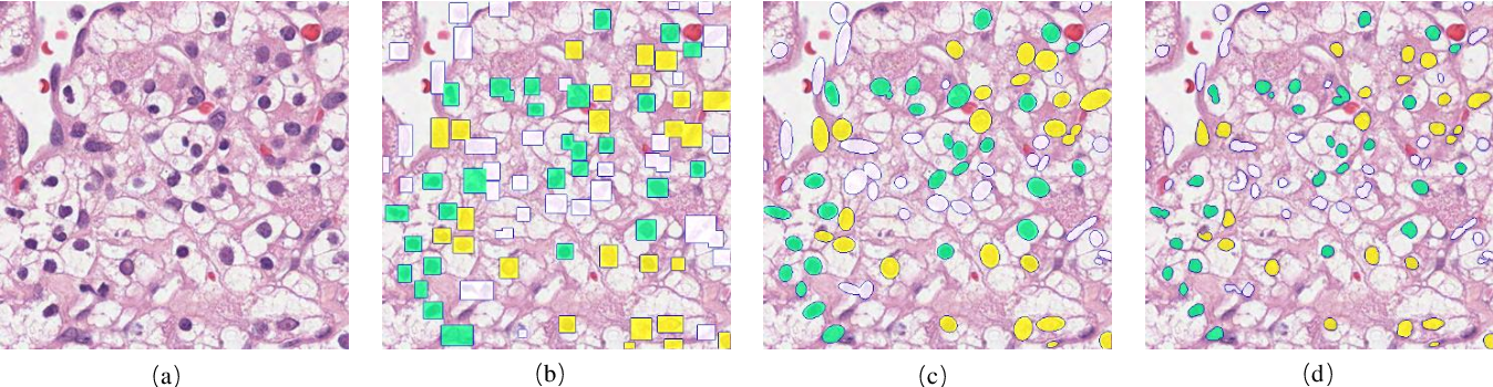 Figure 2 for Effects of annotation granularity in deep learning models for histopathological images