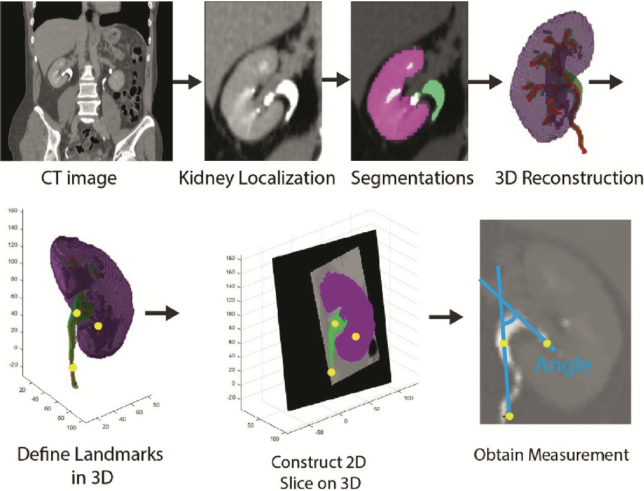 Automated Characterization of Pyelocalyceal Anatomy Using CT ...
