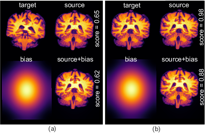 Figure 3 for Exploring Intensity Invariance in Deep Neural Networks for Brain Image Registration
