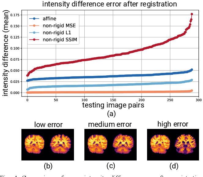 Figure 4 for Exploring Intensity Invariance in Deep Neural Networks for Brain Image Registration