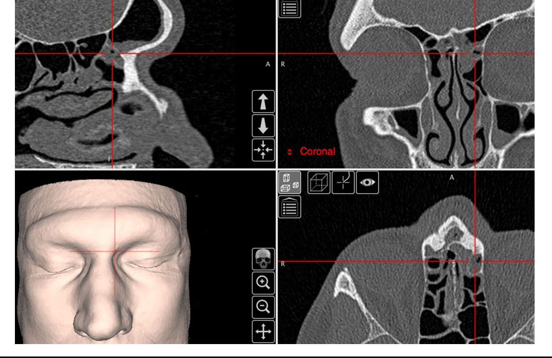 Figure 2 from The International Frontal Sinus Anatomy Classification ...