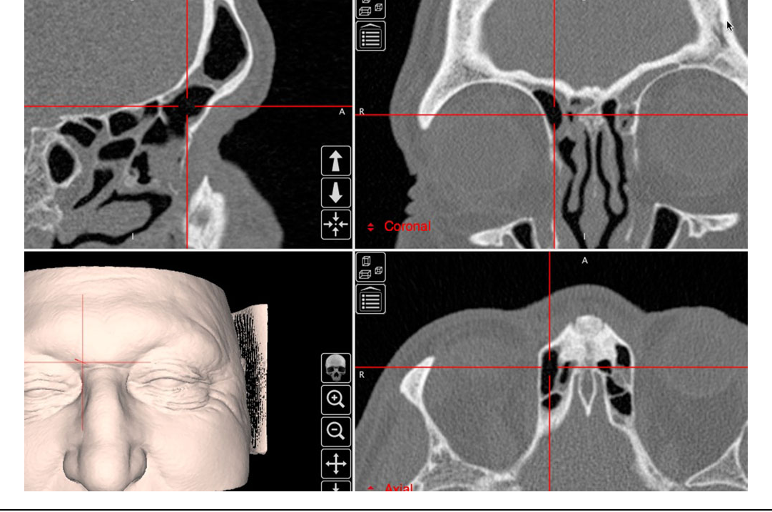 Figure 3 from The International Frontal Sinus Anatomy Classification ...
