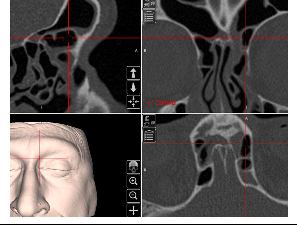 Figure 5 from The International Frontal Sinus Anatomy Classification ...