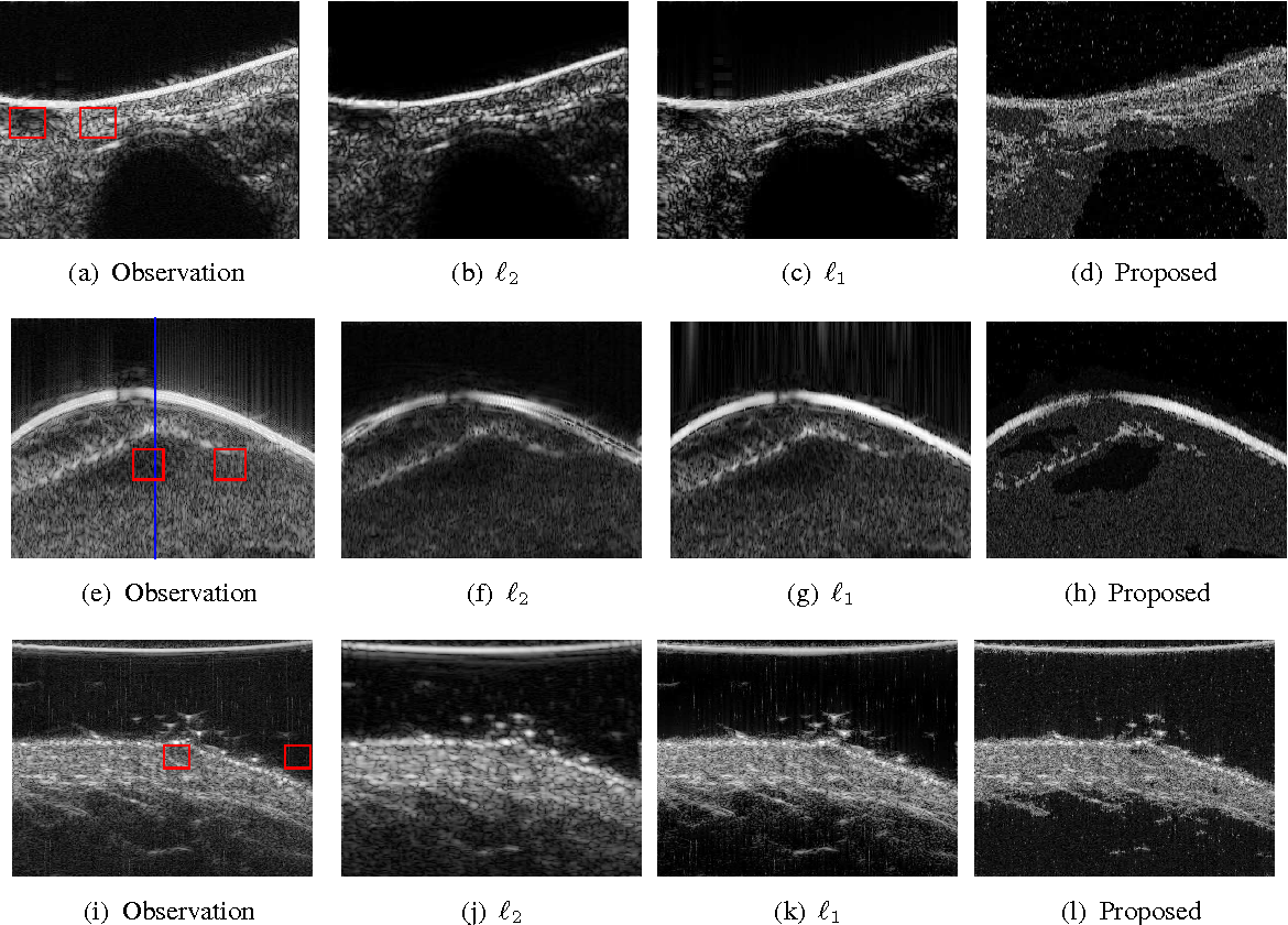 Figure 2 for Joint Segmentation and Deconvolution of Ultrasound Images Using a Hierarchical Bayesian Model based on Generalized Gaussian Priors