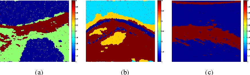 Figure 4 for Joint Segmentation and Deconvolution of Ultrasound Images Using a Hierarchical Bayesian Model based on Generalized Gaussian Priors