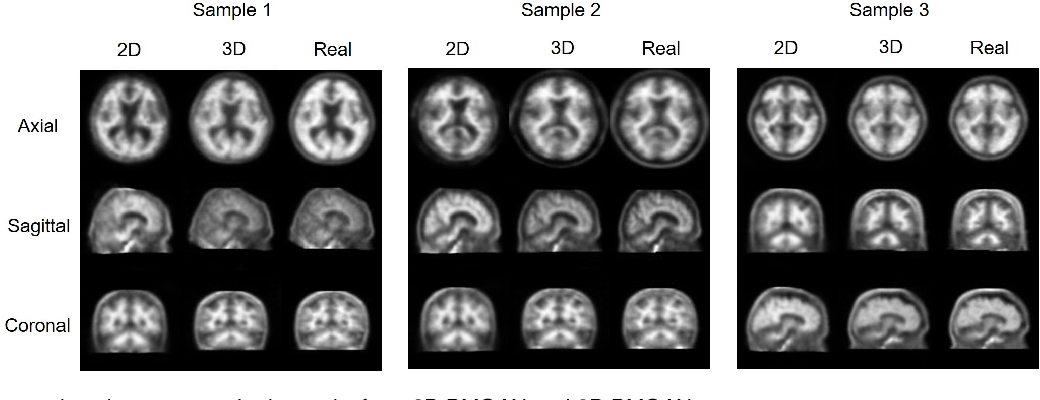Figure 4 for Bidirectional Mapping Generative Adversarial Networks for Brain MR to PET Synthesis