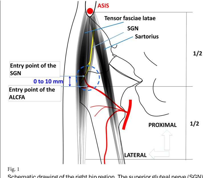 Figure 1 From Potential Risk To The Superior Gluteal Nerve During