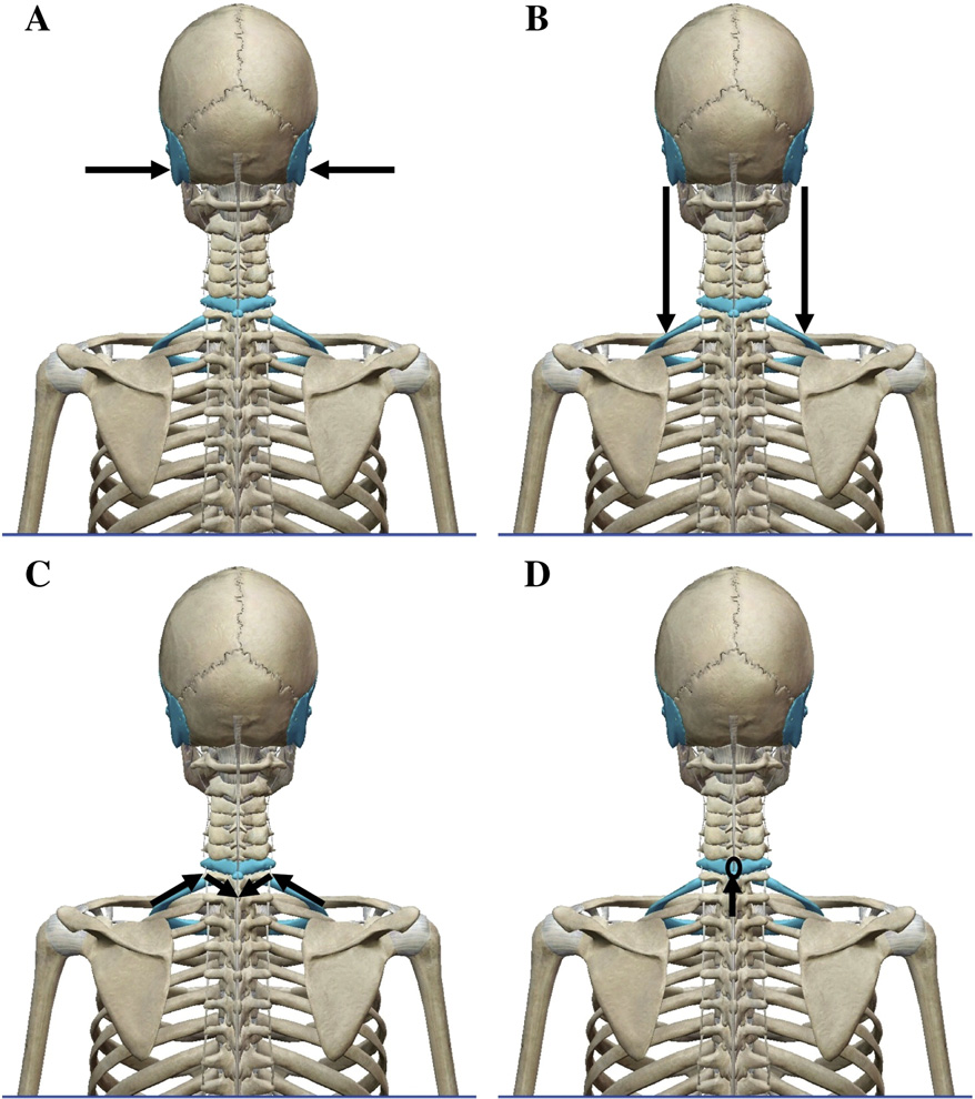 Locating the Seventh Cervical Spinous Process: Accuracy of the ...
