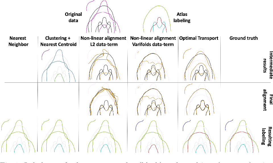 Figure 1 for Fast and Scalable Optimal Transport for Brain Tractograms