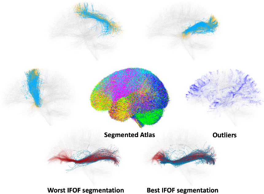Figure 2 for Fast and Scalable Optimal Transport for Brain Tractograms