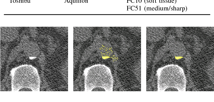 Figure 1 for Automatic calcium scoring in low-dose chest CT using deep neural networks with dilated convolutions