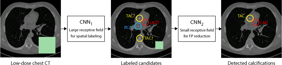 Figure 2 for Automatic calcium scoring in low-dose chest CT using deep neural networks with dilated convolutions