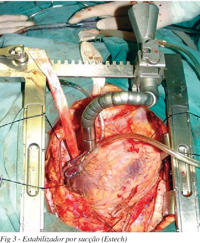 Figure 3 From Double Skeletonized Internal Thoracic Artery Vs