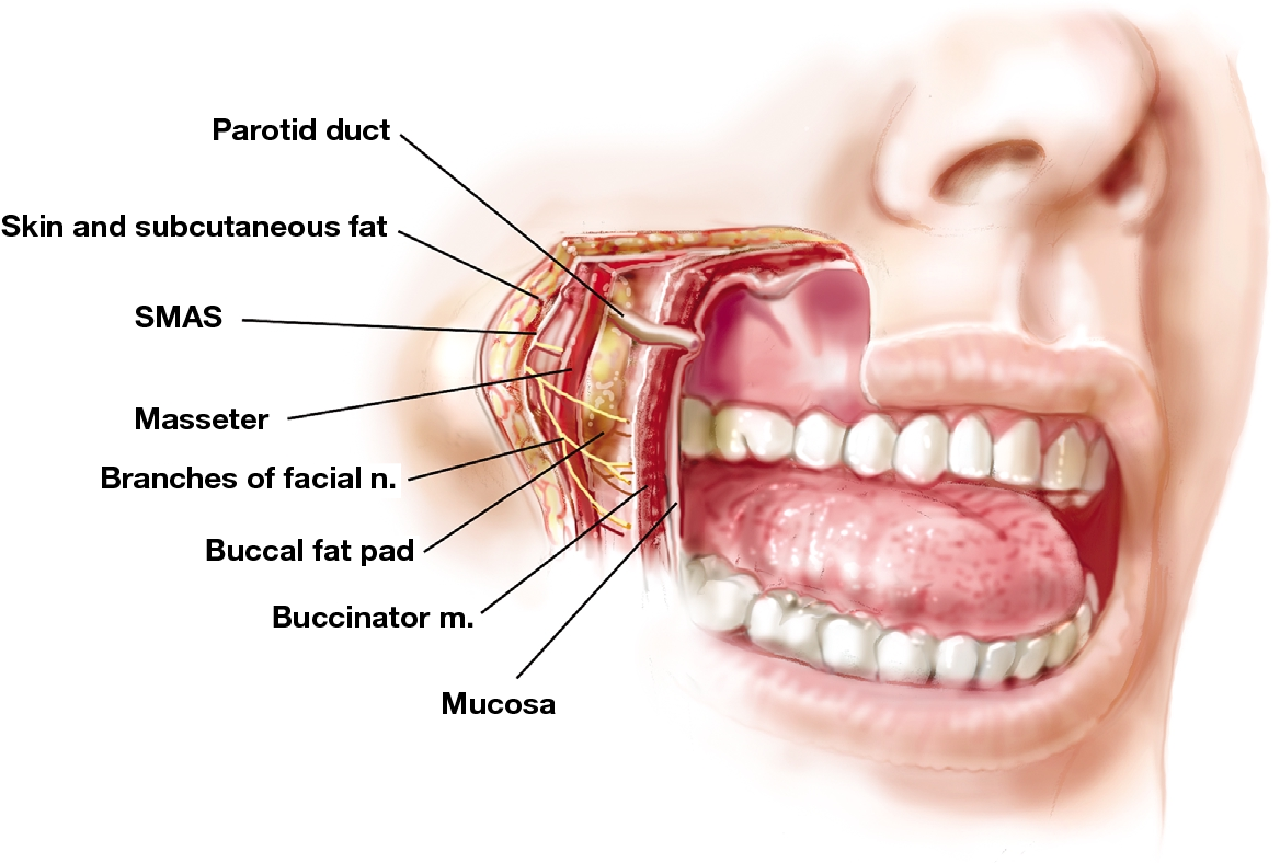 Figure 2 from Managing the buccal fat pad. - Semantic Scholar
